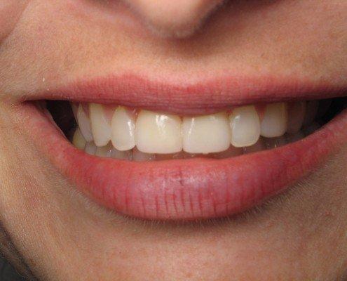 Smile After Veneers