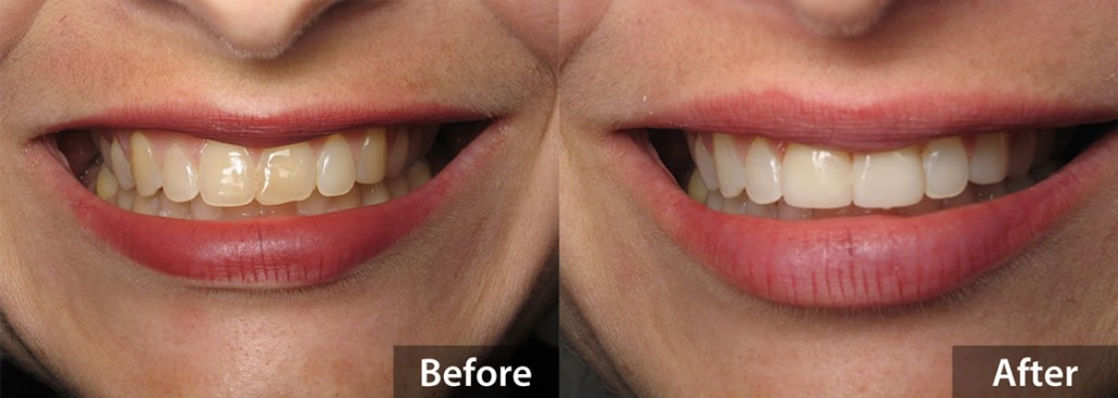 Porcelain Veneers - Before & After