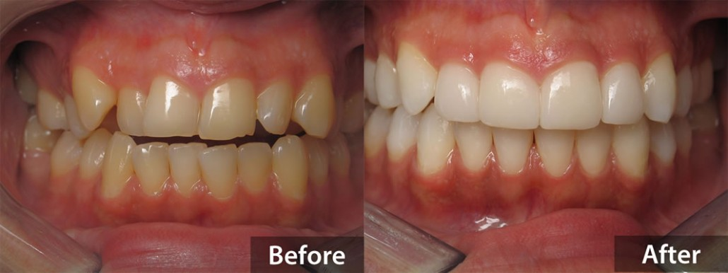 Smile Makeover using Invisalign clear braces, porcelain veneers and Zoom teeth whitening