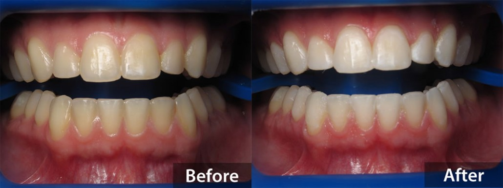 Zoom Teeth Whitening - Before and After
