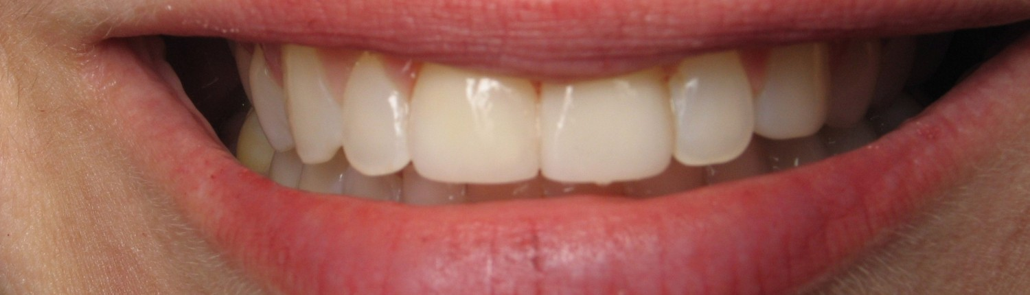 Smile After Veneers-Daniel N. Galaif, D.D.S.-Encino Dentist