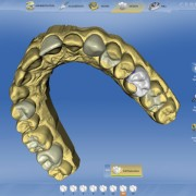 CAD/CAM Teeth Image