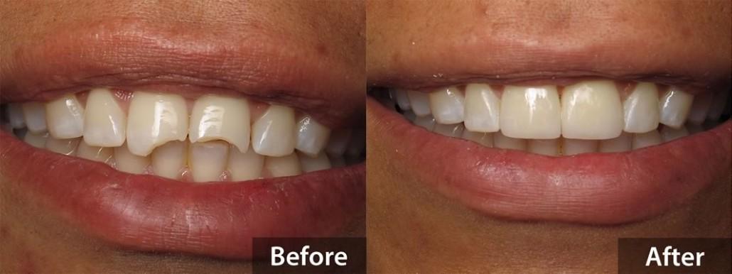 Dental Bonding - Before & After