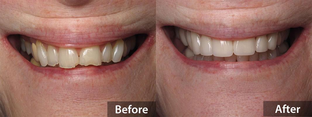 Veneers - Before & After